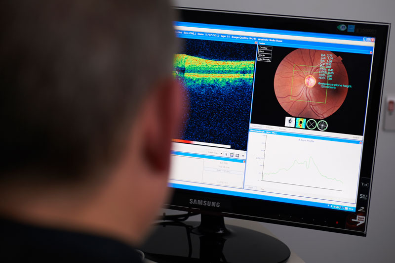 Diabetes Retinal Screening